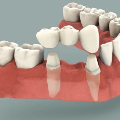 Single Day Tooth Replacement: Fact Sheet