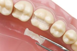Dental Inlays