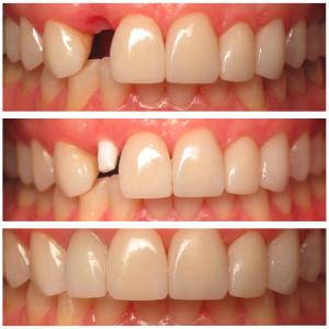 White Zirconia Dental Implant