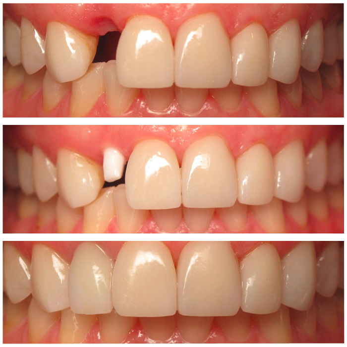 Image result for Natural Teeth Restoration