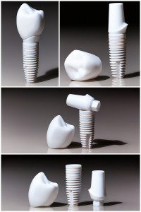 Models of dental, implants, dental dentist objects implants composition collage
