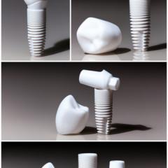 Dental Restorations: Bridges -vs- Implants