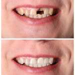 Smile Like You Mean It, Bridges -vs- Implants