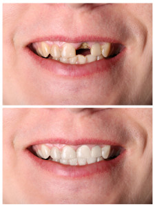 Permanent solutions for your dental restoration