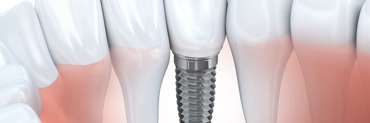 Dentist in Houston, TX describes the benefits of using dental implants made of ceramic