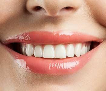 Ceramic Dental Implants in Houston area image 2