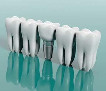 Ceramic Dental Implants in Houston area Image 3