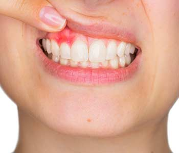 Laser Gum Treatment in Houston TX area Image 2